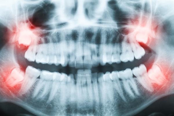 Răng khôn mọc lệch ra má phải làm sao?