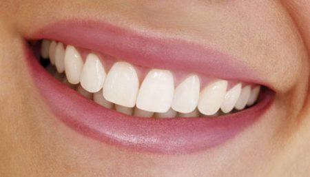 Răng sứ cao cấp giá bao nhiêu?