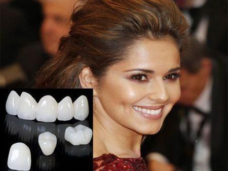 Răng sứ không kim loại giá bao nhiêu ?