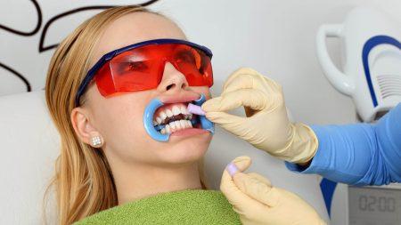 Tẩy trắng răng bằng laser bao nhiêu tiền ?