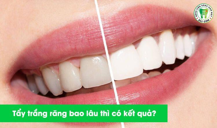 Tẩy trắng răng mất bao lâu