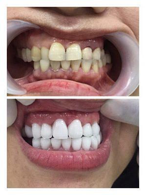 Tẩy trắng răng có đau không?