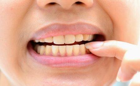 tẩy trắng răng loại nào tốt nhất
