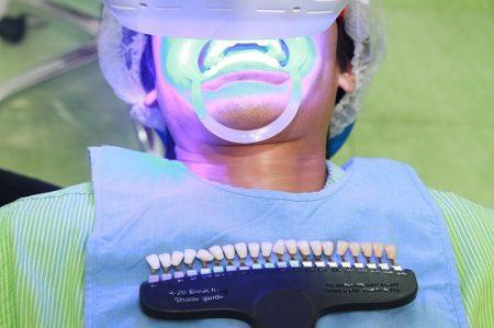 Tẩy trắng răng vĩnh viễn có được không ?