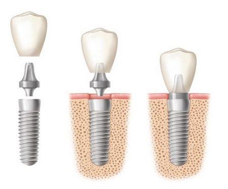 Trồng răng hàm có đau không?