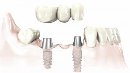 trong-rang-implant-co-dau-khong-1