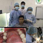 trong-rang-implant-gia-bao-nhieu-tien-1