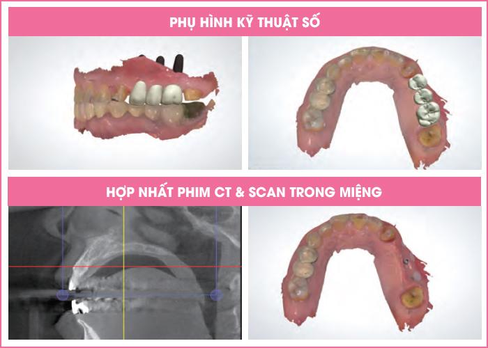 trong-rang-implant-mat-bao-lau-thoi-gian-1