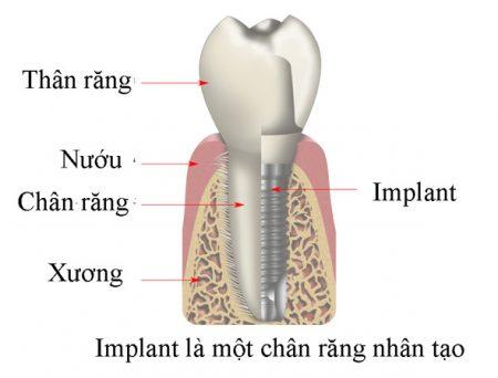 trong-rang-implant-o-dau-tai-tphcm-1
