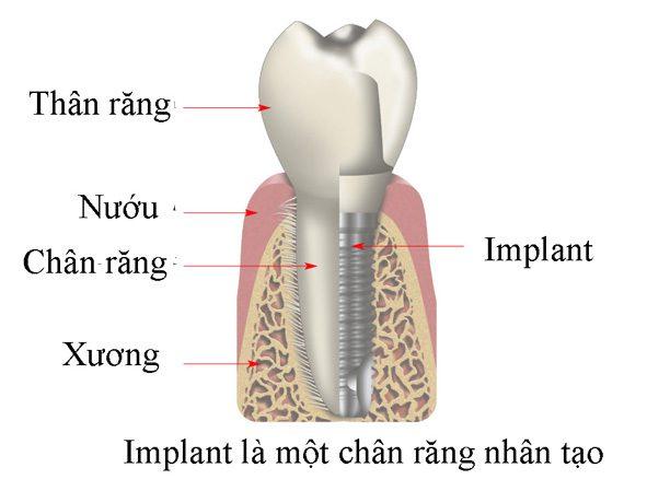 Trồng răng Implant ở đâu tại tphcm?