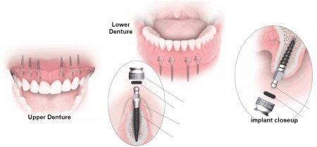 trong-rang-implant-o-dau-tai-tphcm-2