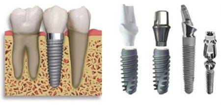 trong-rang-implant-o-dau-tai-tphcm-3