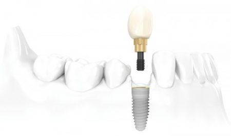 Trồng răng ở đâu tốt tại tphcm