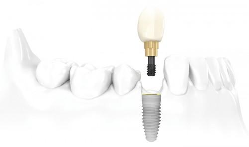 Trồng răng ở đâu tốt tphcm