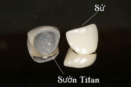 rang-su-titan-gia-bao-nhieu-2