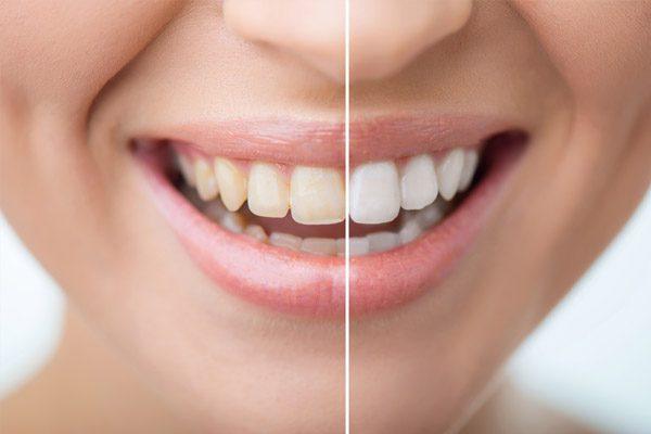 Tẩy trắng răng như thế nào là tốt nhất?