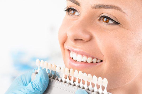 bảng giá bọc răng sứ thẩm mỹ