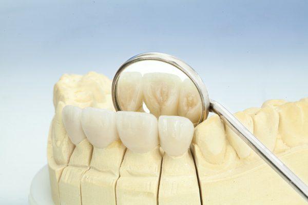 bảng giá bọc răng sứ