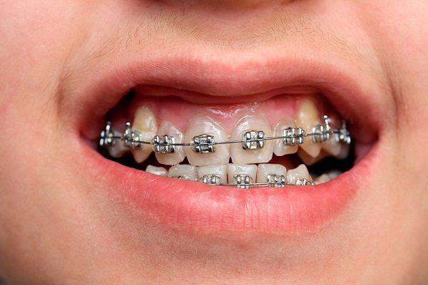 Có nên niềng răng khểnh không?