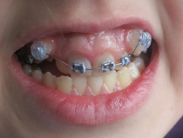 khi nào nên niềng răng khểnh?