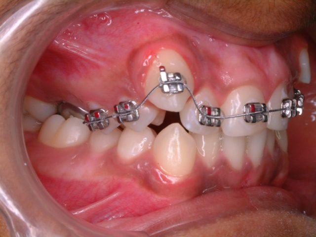phương pháp niềng răng khểnh