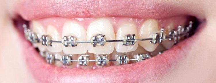 Niềng răng có hại không?