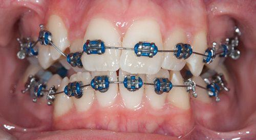 Niềng răng là gì? Những điều Bác sỹ lưu ý