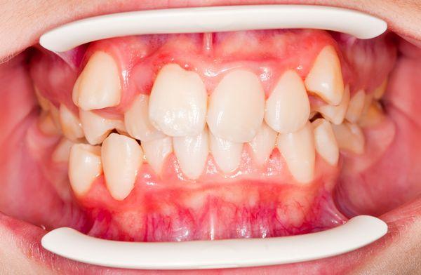 Niềng răng mọc lệch nên hay không?