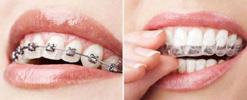 Niềng răng tháo lắp bao nhiêu tiền?