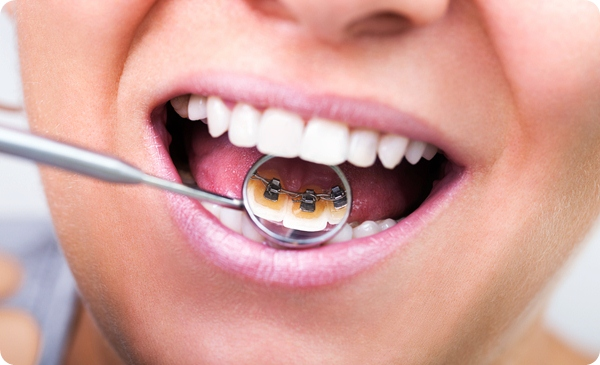 Thời gian niềng 4 răng cửa mất bao lâu?