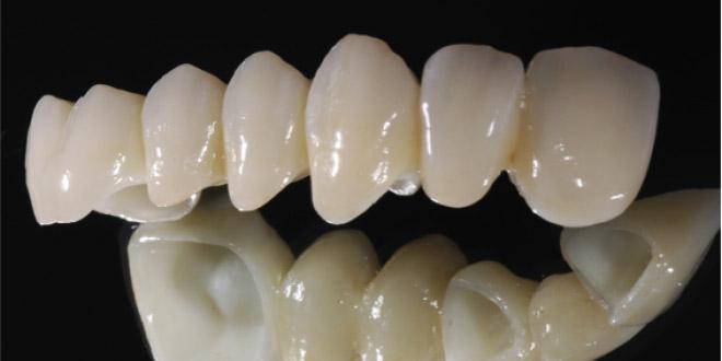 Độ bền của răng sứ Cercon như thế nào?