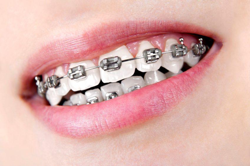 Niềng 2 răng cửa bị hô mất bao lâu?