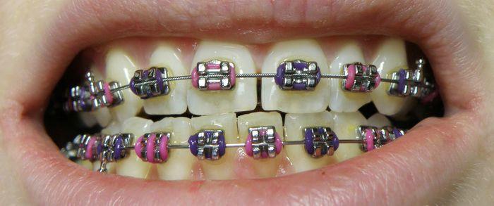 Niềng 2 răng cửa thưa có được không?