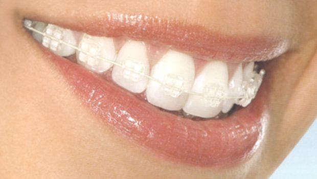 Niềng 4 răng cửa giá bao nhiêu tiền?