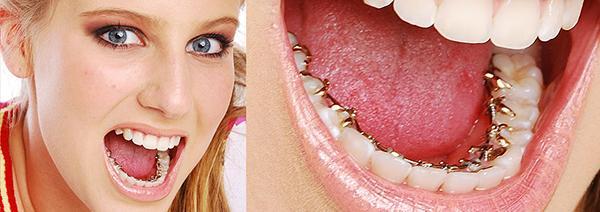 Niềng răng hàm dưới giá bao nhiêu tiền?