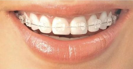 Niềng răng hàm trên giá bao nhiêu tiền?