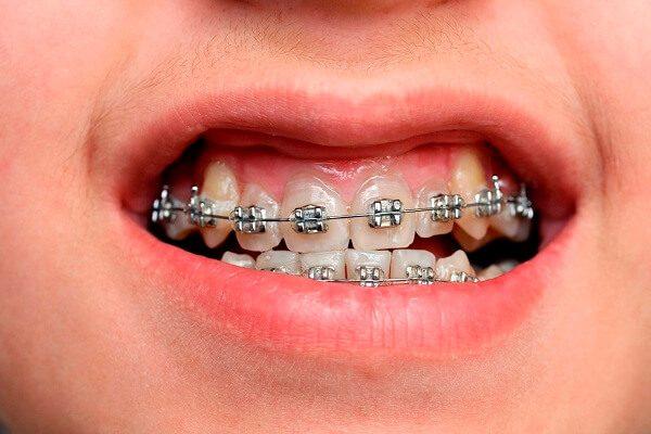 Niềng răng khểnh như thế nào?