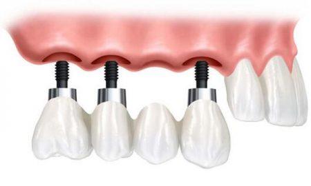 lam-implant-o-benh-vien-rang-ham-mat-3
