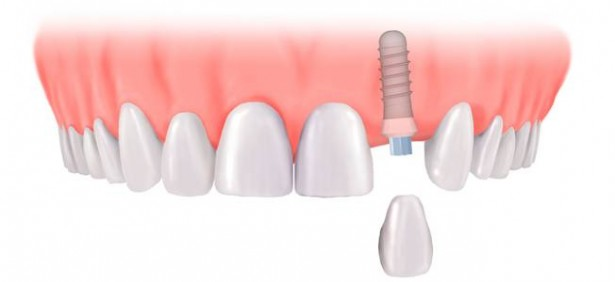 Làm răng Implant là gì?