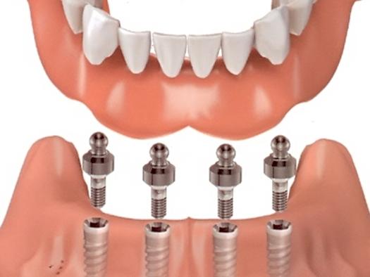lam-rang-implant-la-gi-2
