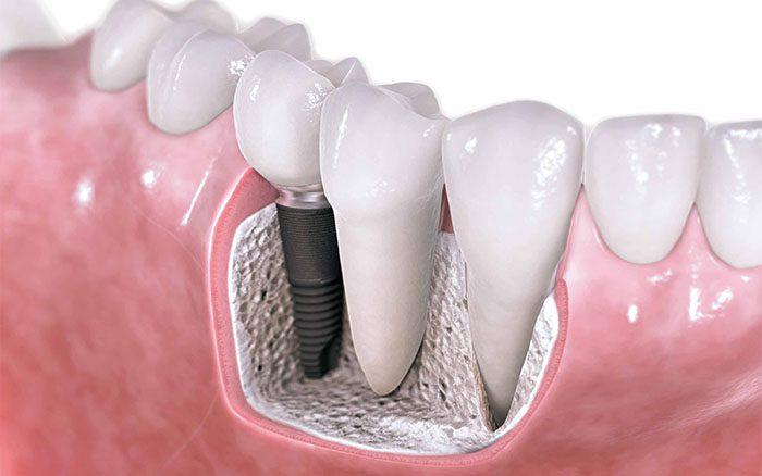 lam-rang-implant-la-gi-3
