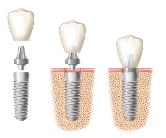 Phương pháp trồng răng Implant cố định