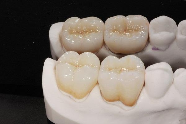 bọc răng sứ titan có ưu điểm gì