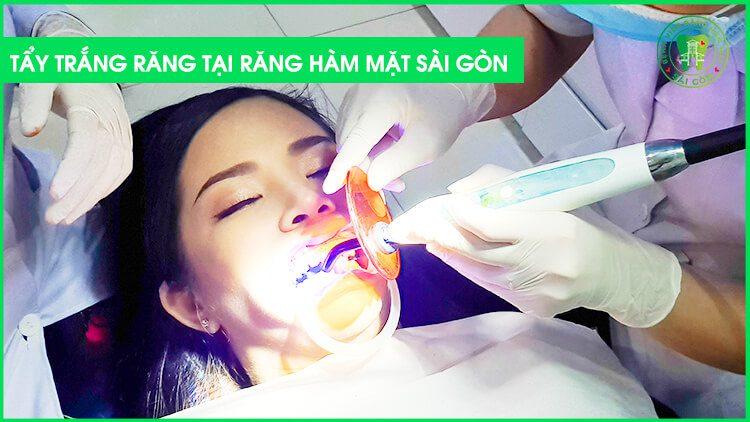 Cách tẩy trắng răng hiệu quả là gì