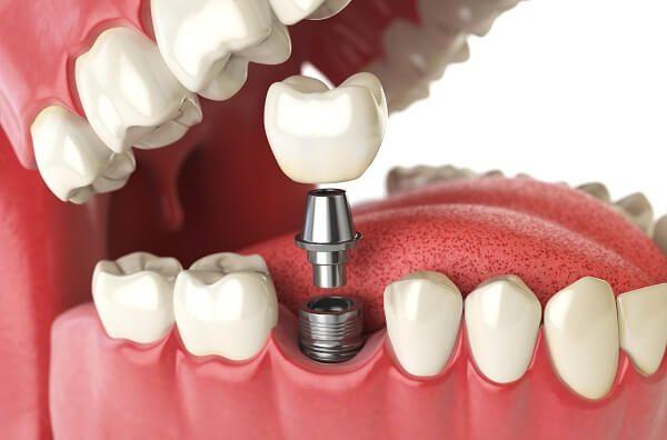 Trồng răng giả vĩnh viễn bằng công nghệ hiện đại