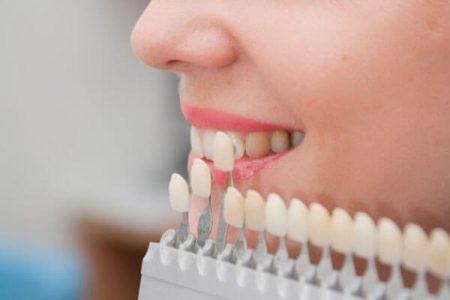 bọc răng sứ Veneer