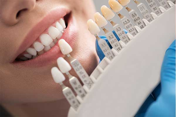 răng sứ siêu mỏng Veneer