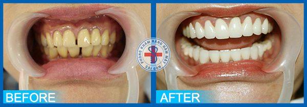 Trước và sau khi bọc răng sứ
