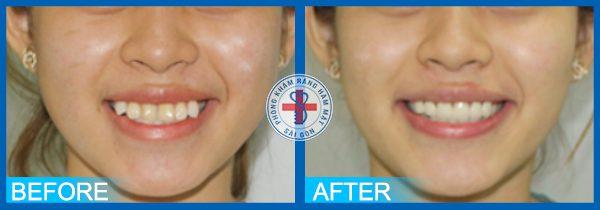 Trước và sau khi bọc răng sứ 1