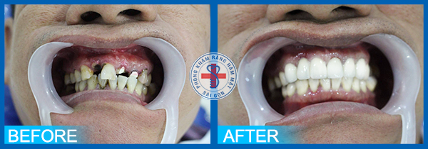 Trước và sau khi bọc răng sứ 2
